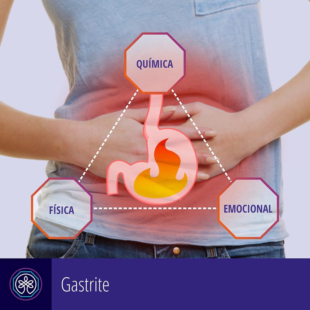 Instituto Pro Therapie | Gastrite