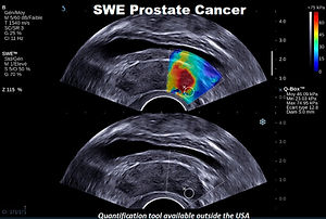 SWE Prostate Cancer