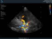 XP 5-1 - новый фазированный датчик для ТСD. Цветовая допплерограмма Виллизиева круга у взрослого мужчины
