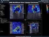 3D SWE  Трехмерная Сдвиговая Эластография