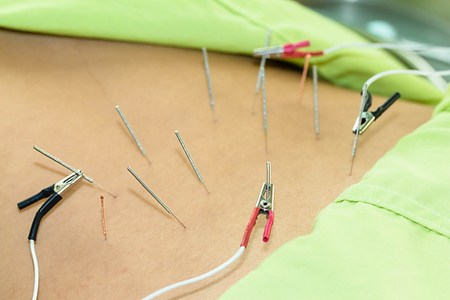 Back Acupuncture with Electrical stimula