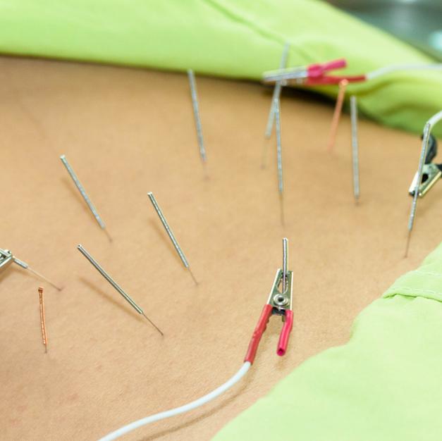 Electro-Acupuncture