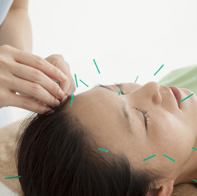 Facial/Cosmetic Acupuncture