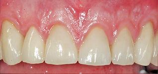 Tannlegene