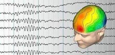 EEG.jpeg