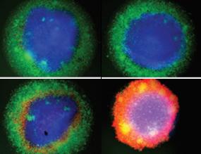 Bridging antibodies plus enhancer can destroy breast cancer cells