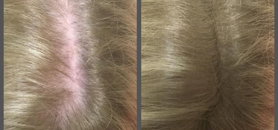 hairfibre_pic.jpg