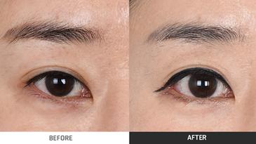 ดวงตาของคุณเป็นภาวะหนังตาตกหรือเปล่า ?
