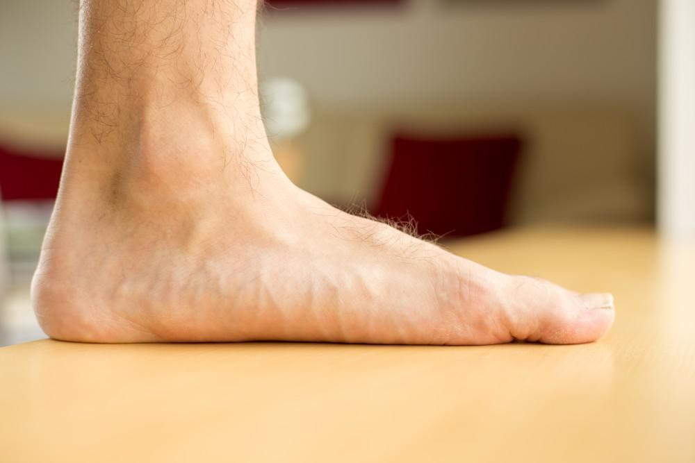 Picture of flat foot patient