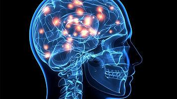 reações-químicas-no-cérebro.jpg