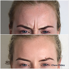Clare Anti-Ageing Injectables 5.png