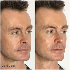 Clare Anti-Ageing Injectables 2.png