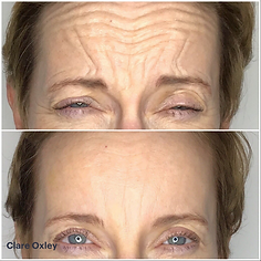 Clare Anti-Ageing Injectables 8.png
