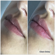 Clare Lips 10.png
