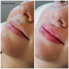 Clare Lips 3.png