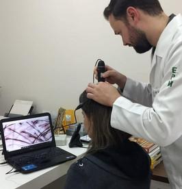 Tricoscopia feminina
