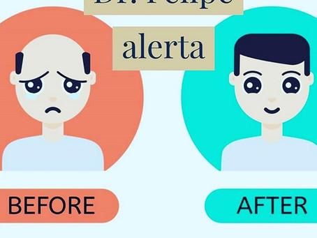 Alerta: venda de pacotes para queda de cabelo