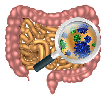 Bacteria in small intestine, causing IBS