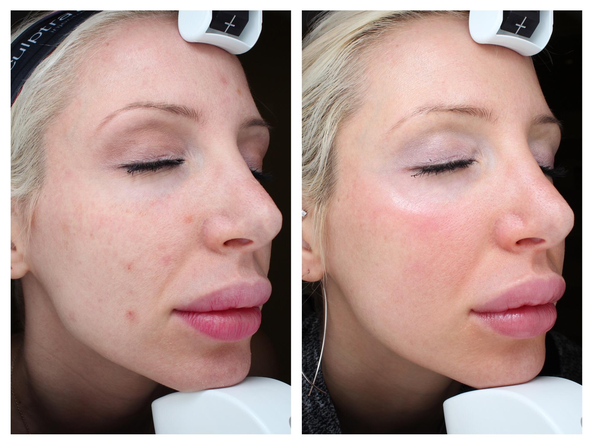 Voor & na laser pigmentatie