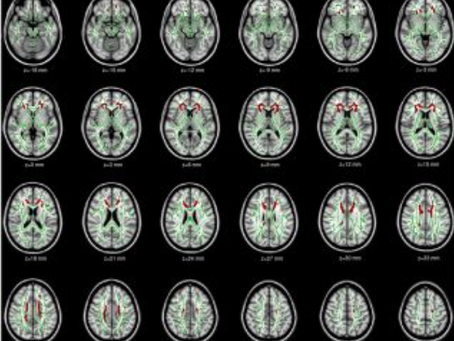 Gray Matters: Too Much Screen Time Damages the Brain