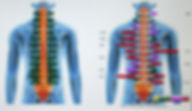 comparaison de l'activité musculaire du dos pour proposer un plan de traitement adapté, Centre chiropratique de Lille, chiropracteur Lille