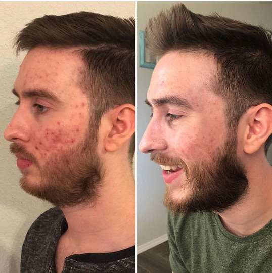 30 Day Clean Eating + Clear Future Skin Care