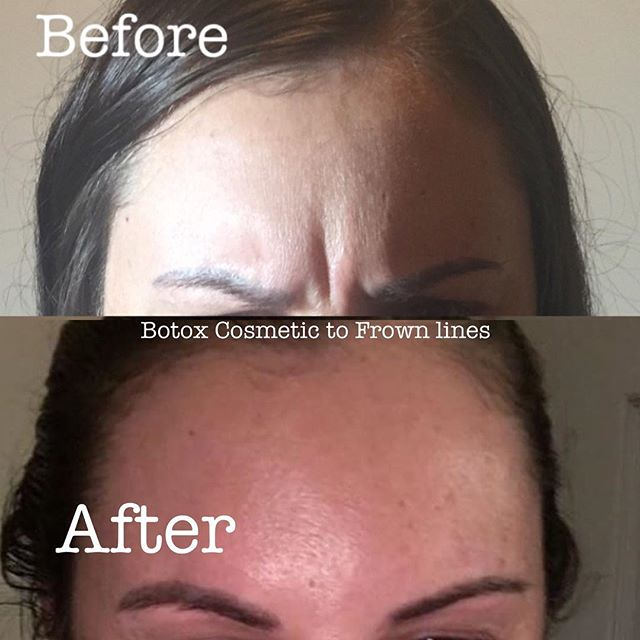 ✨Prevent your facial expressions from making permanent creases on your face! Frown lines gone with �