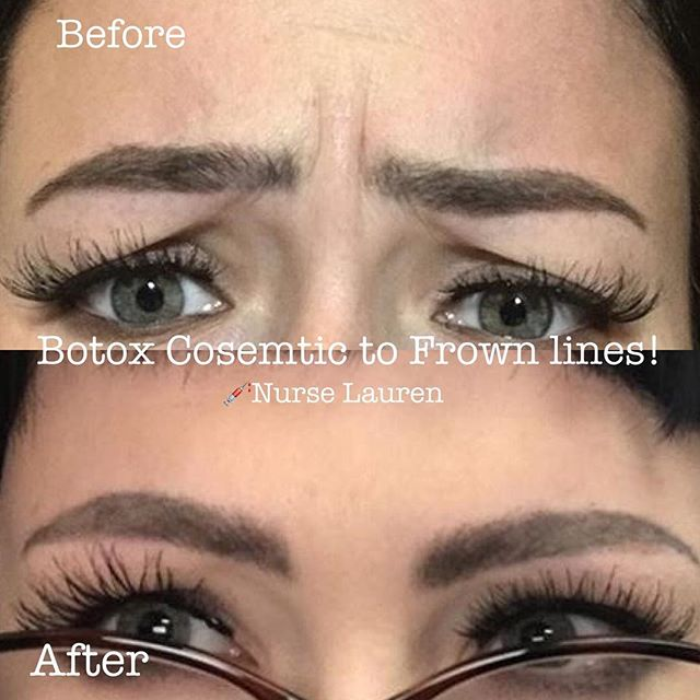 Frown lines gone! 💉Botox Cosmetic! 💌message me today! Visit www.RNlauren