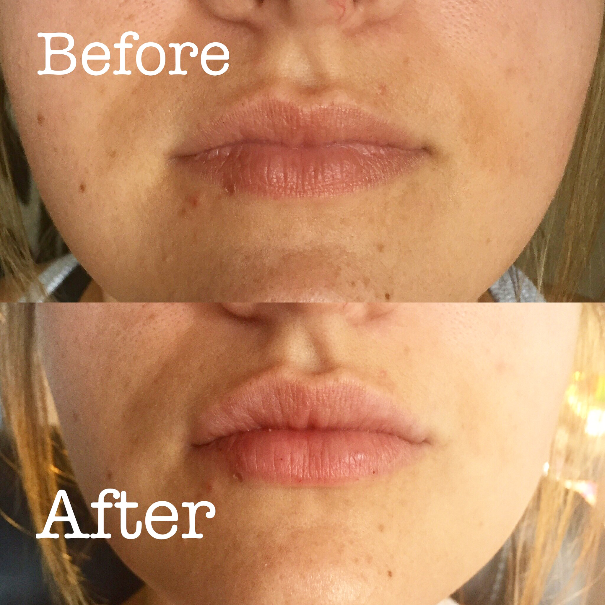 Lip Injections by Nurse Lauren!