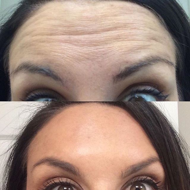 #beforeandafter Botox to the forehead!