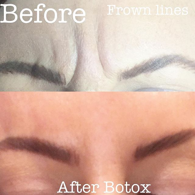 💉Botox Cosmetic wins again! Frown lines gone!! Prevent your everyday facial expressions from leavin