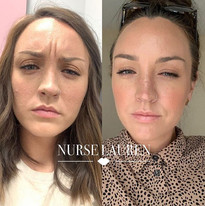 Botox to frown lines