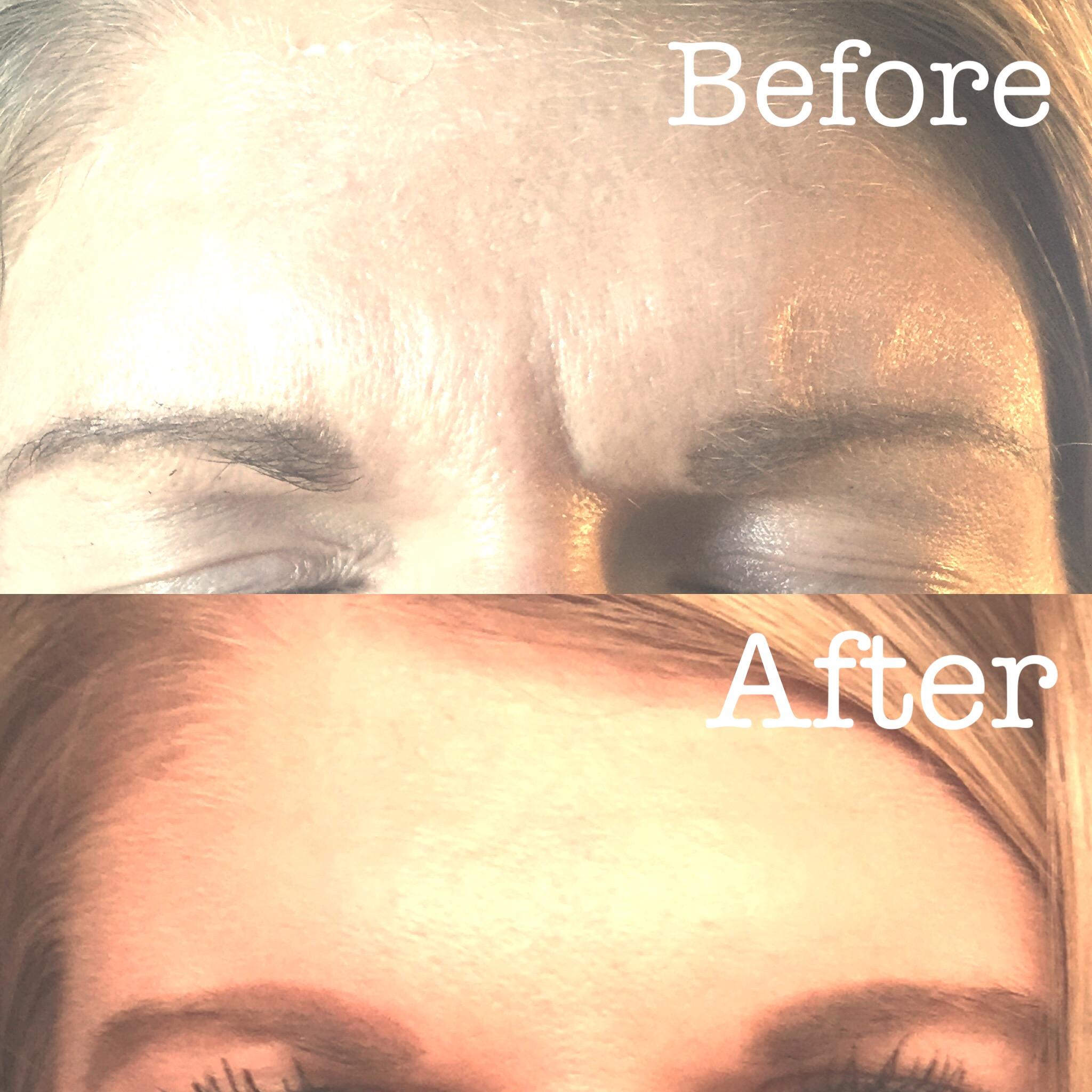 Botox Cosmetic to Frown lines!
