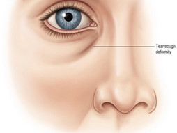 IS TEAR TROUGH FILLER RIGHT FOR YOU!?