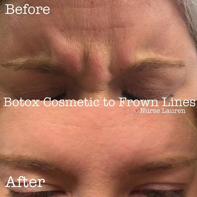 💉Frown lines gone! ✨Botox Cosmetic helps relax facial muscles for a more youthful, calming look!  P