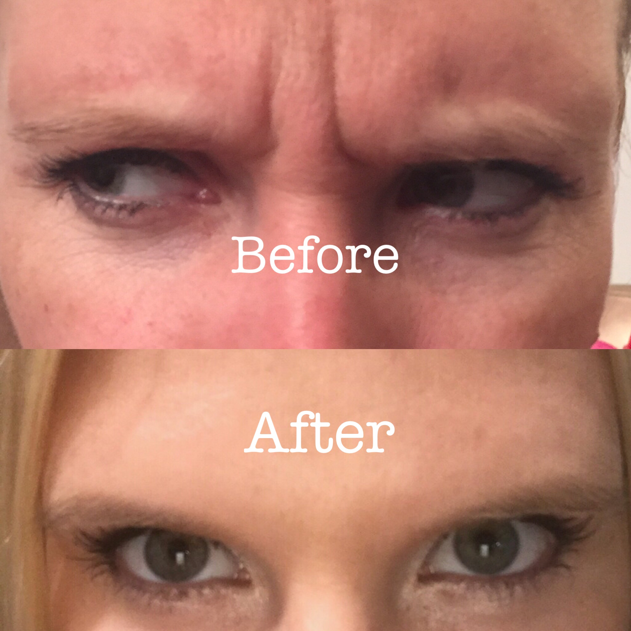 Botox to Glabella area!