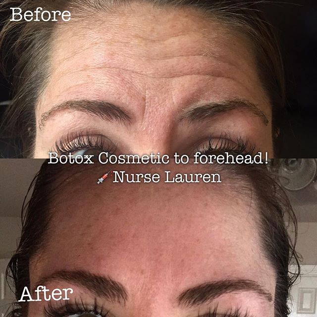 #beforeandafter Botox Cosmetic to forehead and frown line wrinkles!! What a difference! This young l