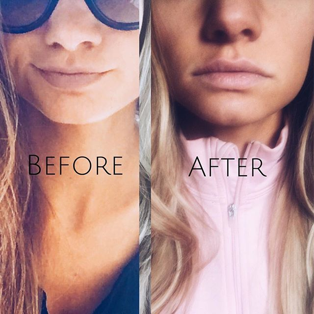 Juvederm to top lip only