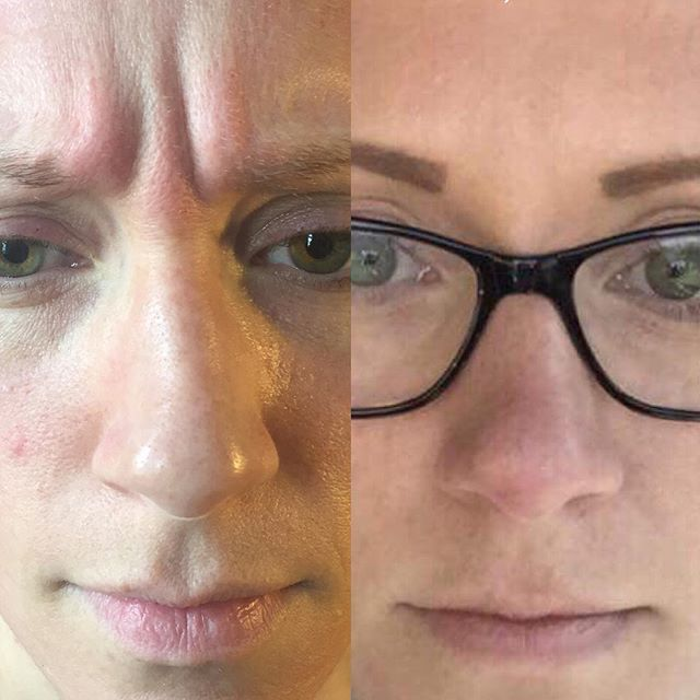 Before and after Botox Cosmetic injections to frown lines (11s, glabella)