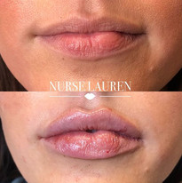 Love these luscious lips!