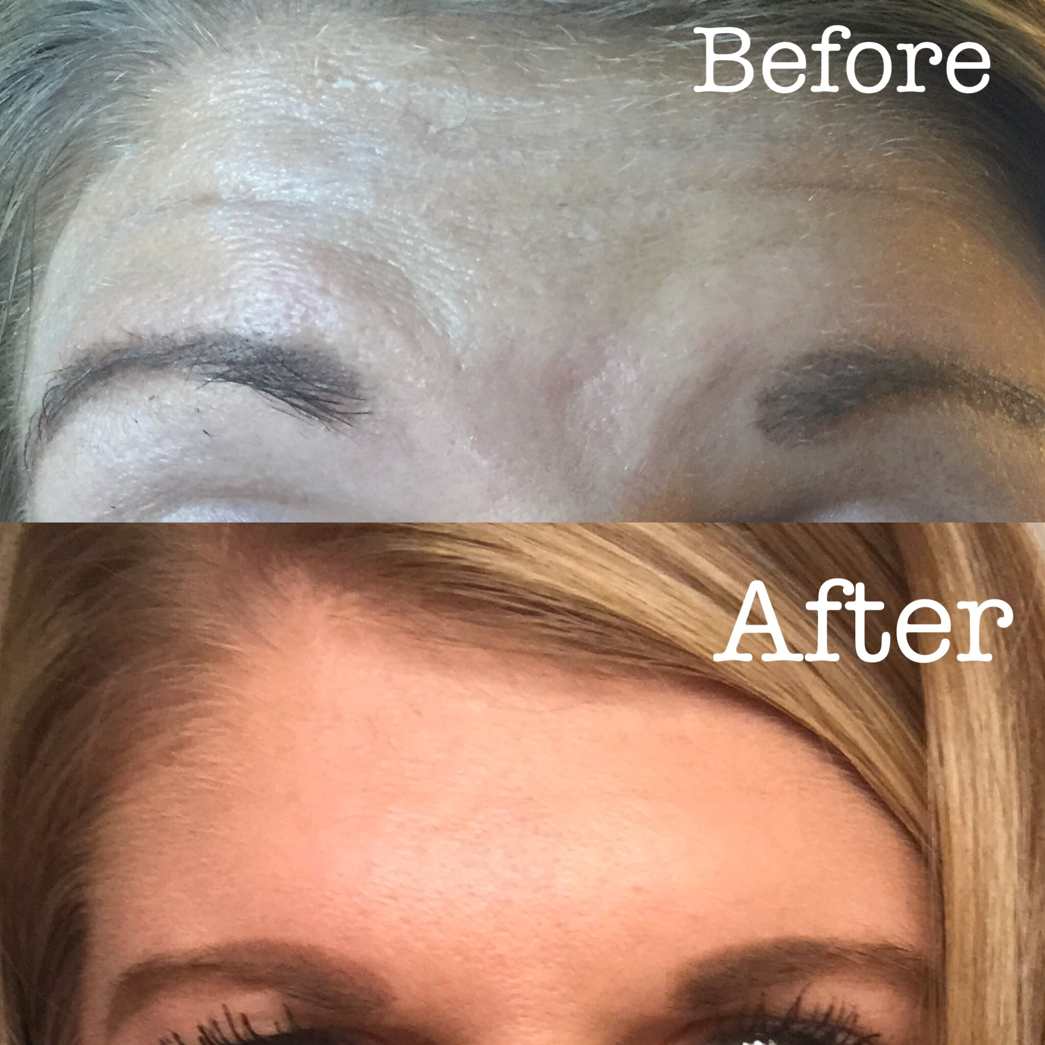 Botox for aging prevention!