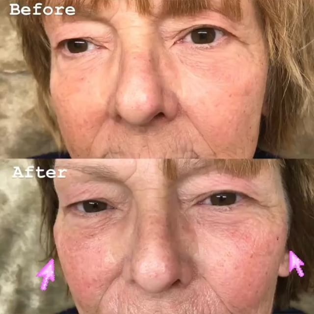 💉Voluma to restore volume to mid face and 💉Vollure for lip augmentation and to smooth wrinkles aro