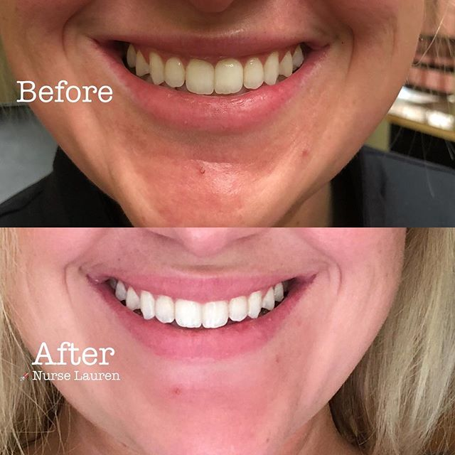 💉Botox to relax the upper lip when smiling! 👄Very subtle but makes a difference in those clients w