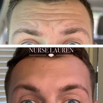 #botox to forehead and frown lines