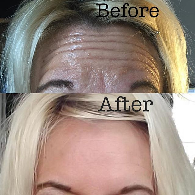 51 yo client, first time Botox user!
