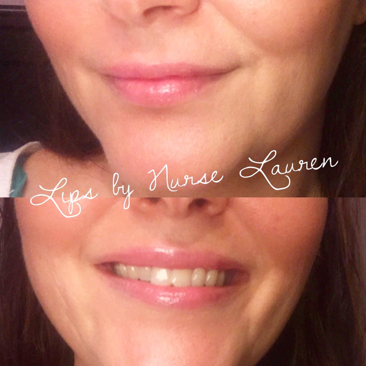 natural lips!