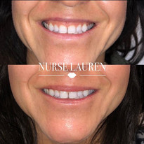 Gummy smile reduction with botox
