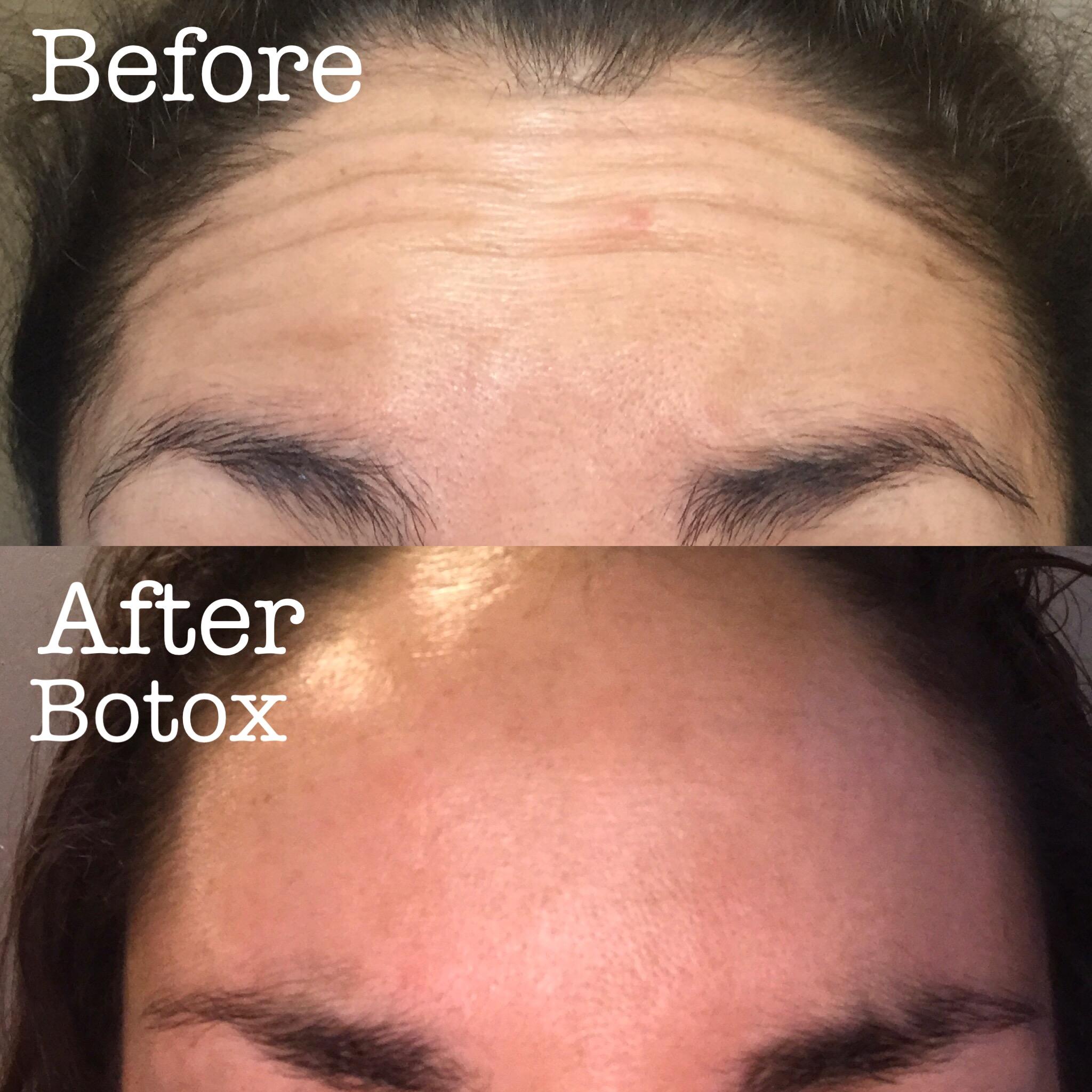 Botox!
