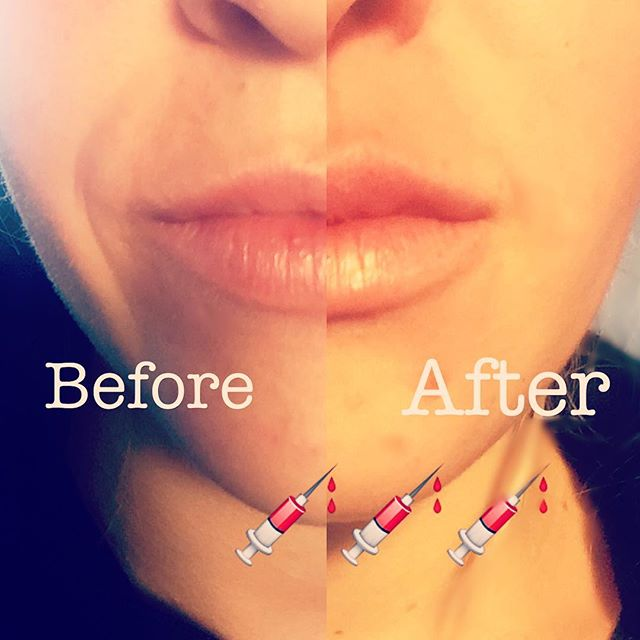 A little bit of Juvederm goes a long way!!