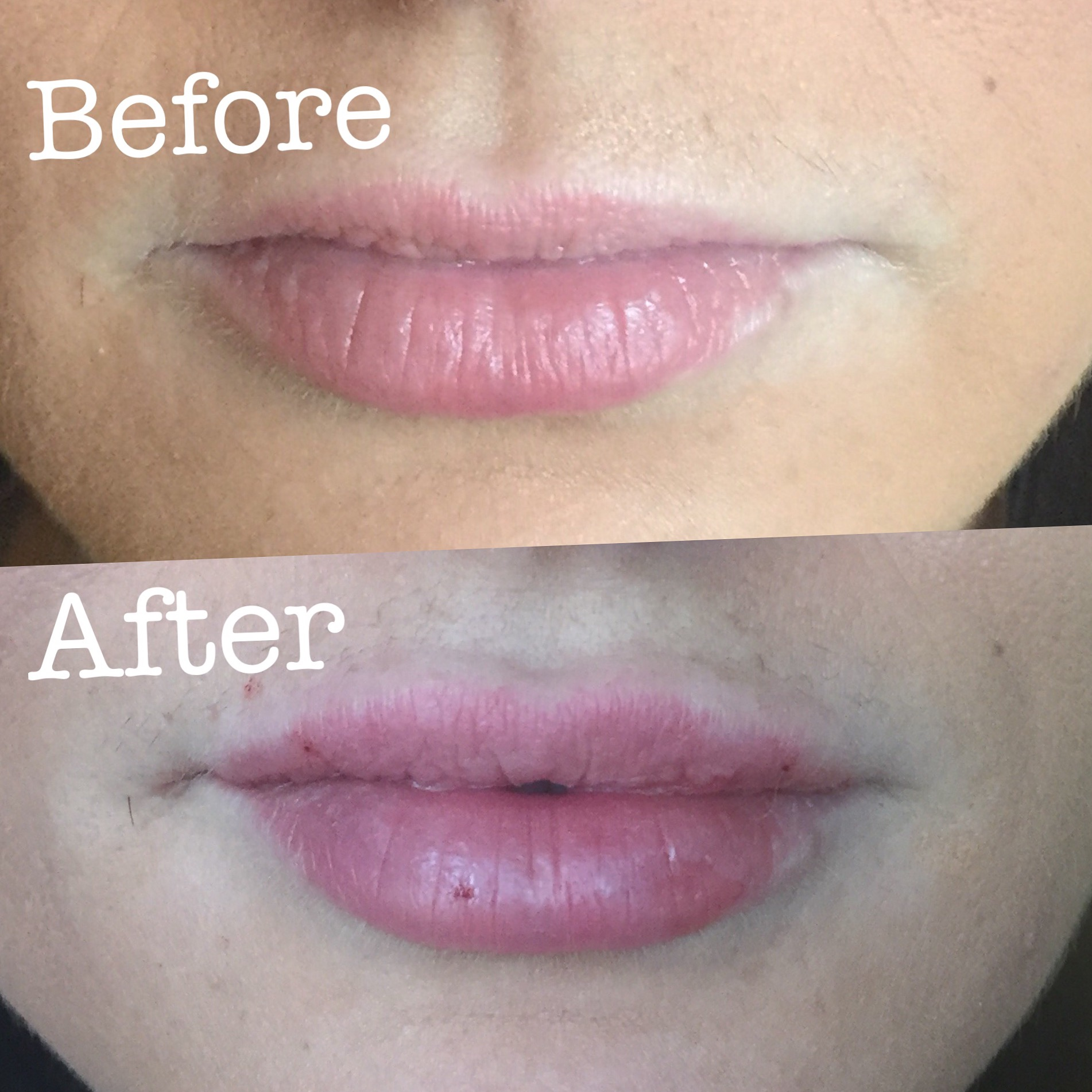 Before and after Lip Injections!